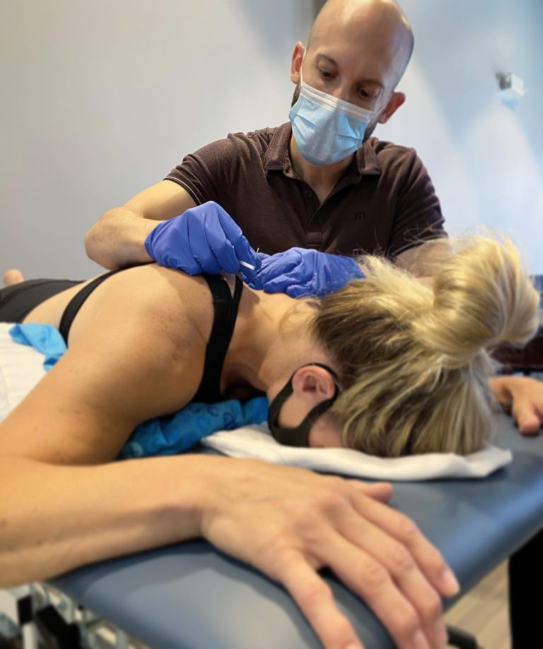 mjpt dry needling therapy